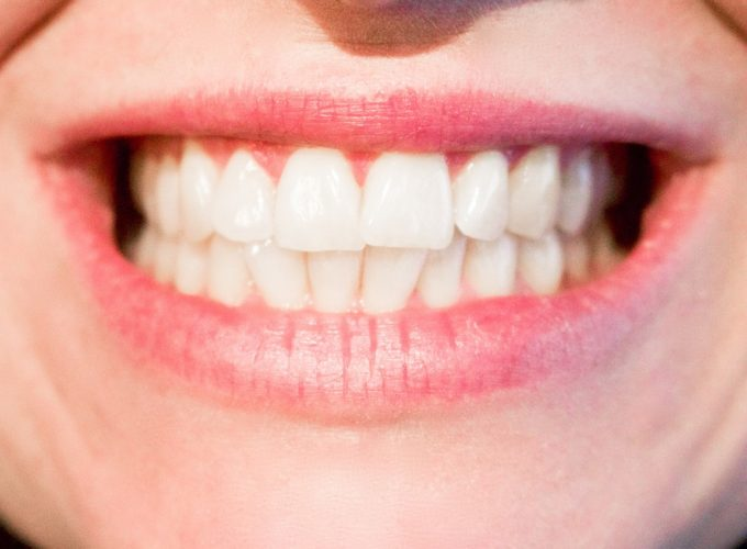 dokonale bílé zuby